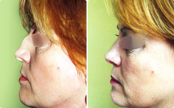 Rhinoplastie et chirurgie du nez vannes dr jacques petit morbihan 56 - Bosse sur le nez apres coup ...